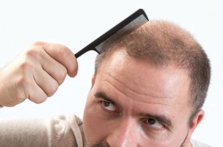 Caída de pelo en hombres: guía para prevenir y evitar la caída