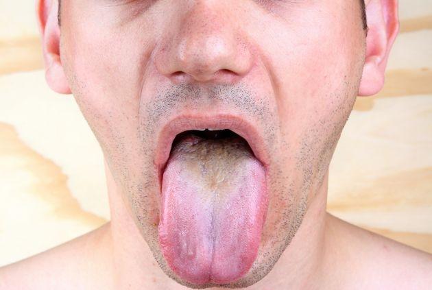 Verrugas en la lengua, guía para eliminarlas